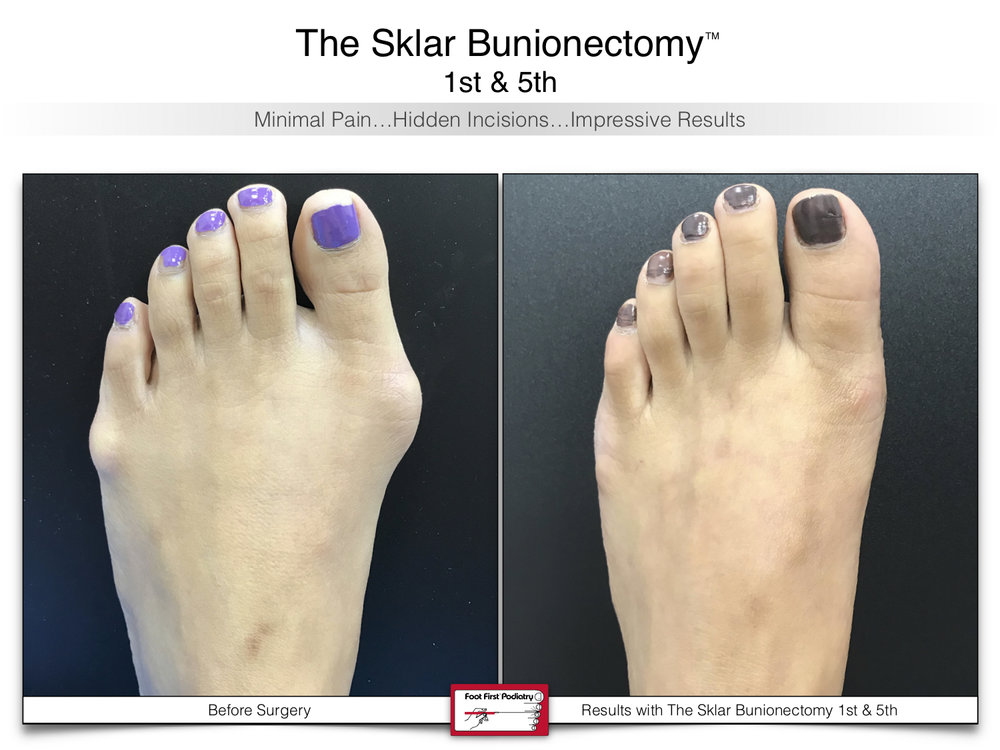 www.footfirst.com   Cosmetic Bunion and Toe Shortening Surgery 110.jpg