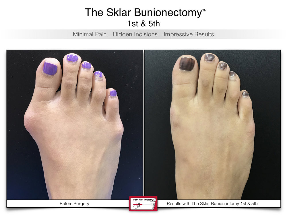 www.footfirst.com   Cosmetic Bunion and Toe Shortening Surgery 111.jpg