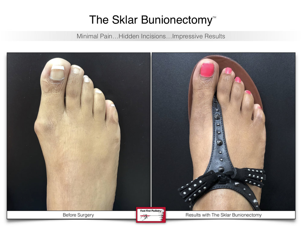 www.footfirst.com   Cosmetic Bunion and:or Toe Shortening Surgery 112.jpg