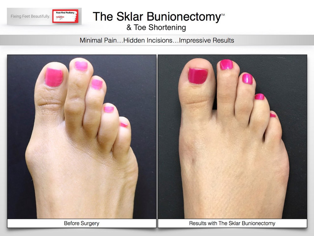 Results You Want to See | Sklar Bunion 03.16 207.jpg