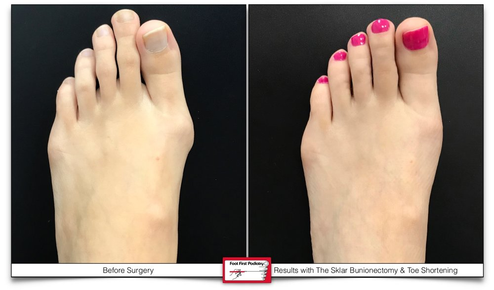 Before & After results with the Sklar Bunionectomy & Toe Shortening Procedure