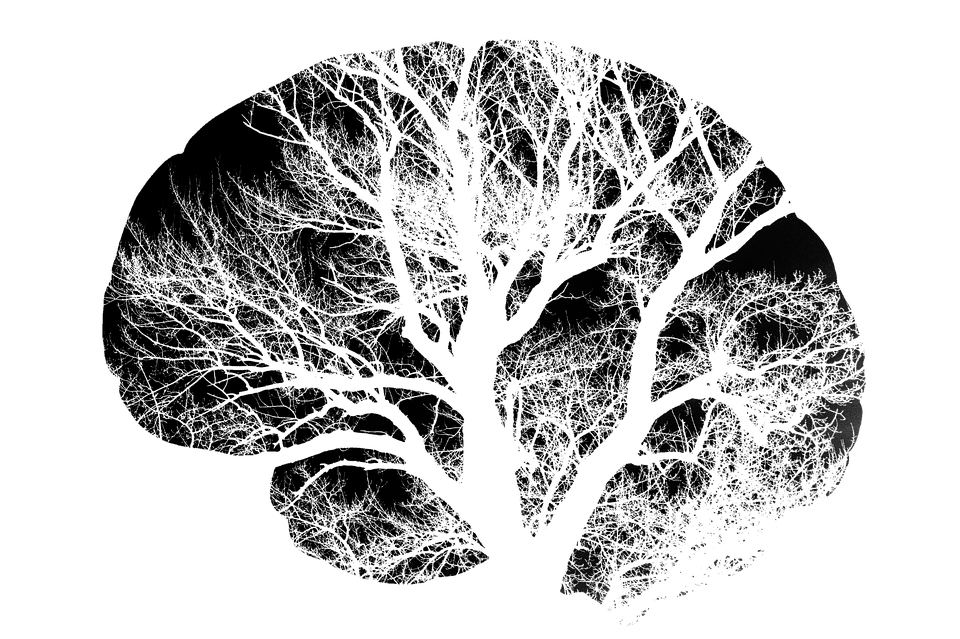What becomes of a brain in a landscape of techonology over trees?