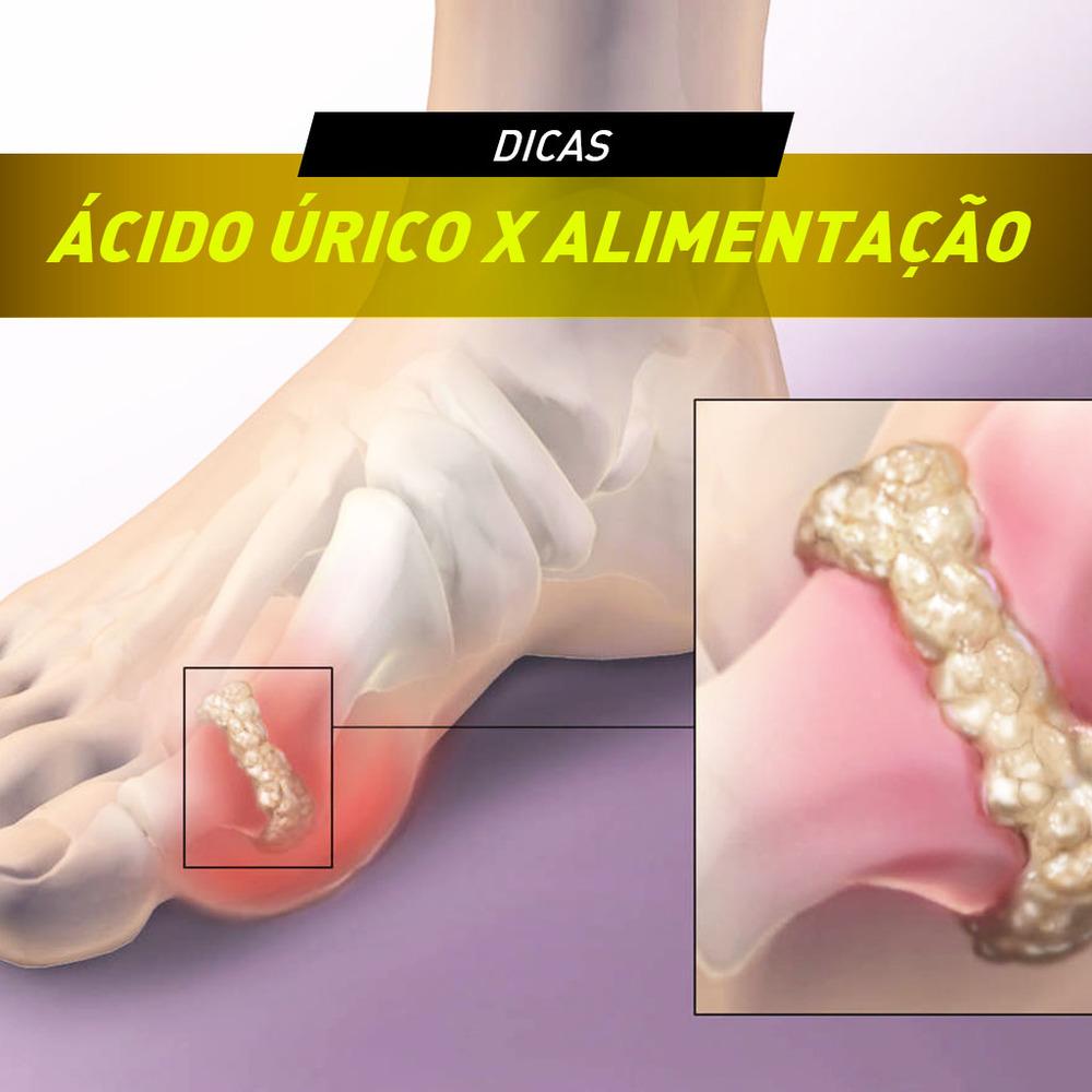el tomate de arbol contiene acido urico que medicina es para bajar el acido urico como afecta el acido urico al cuerpo humano