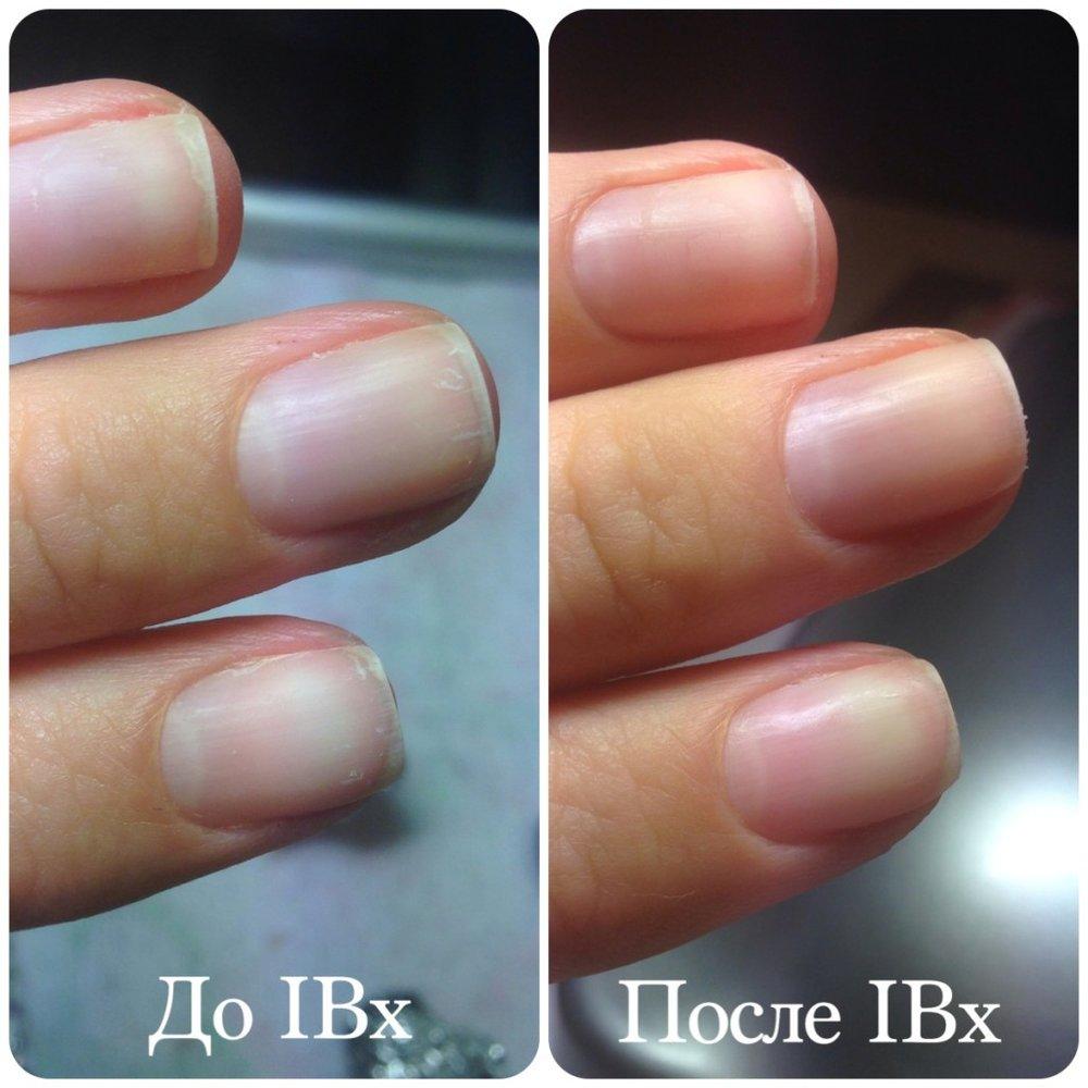 Ibx процедура для ногтей