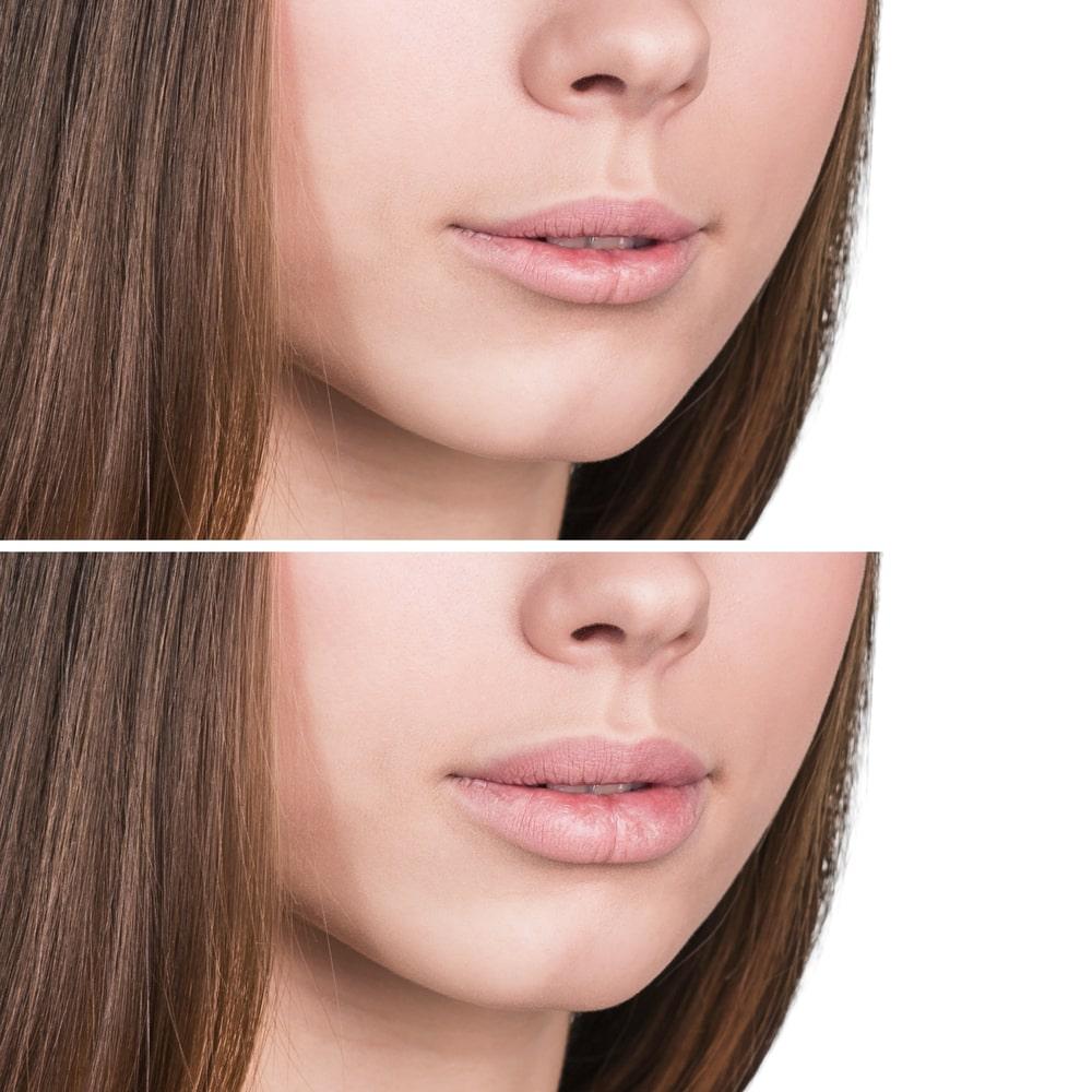 увеличение губ в Твери До и После