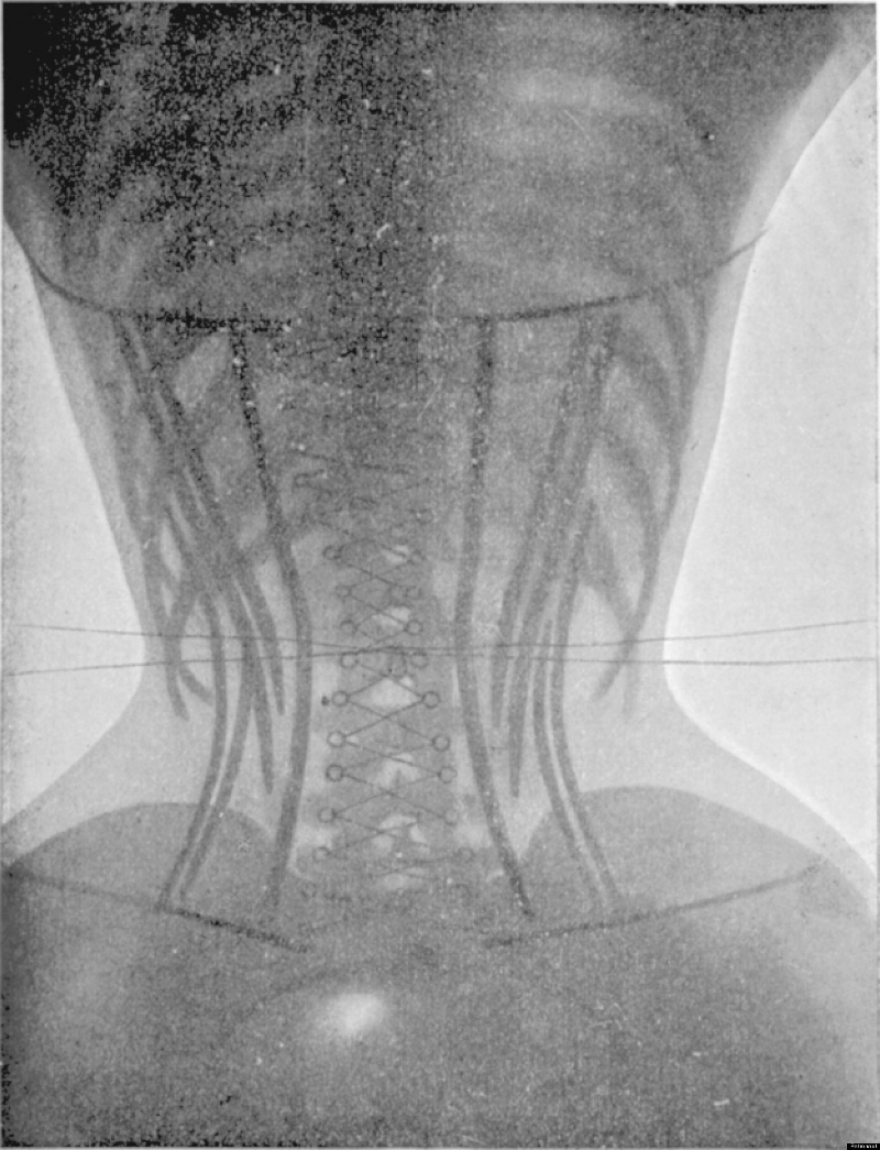 Image 7 / Ludovic O'Followell, X-ray of woman wearing corset, 1908