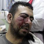 A Wounded Shiite Bahraini Demonstrator