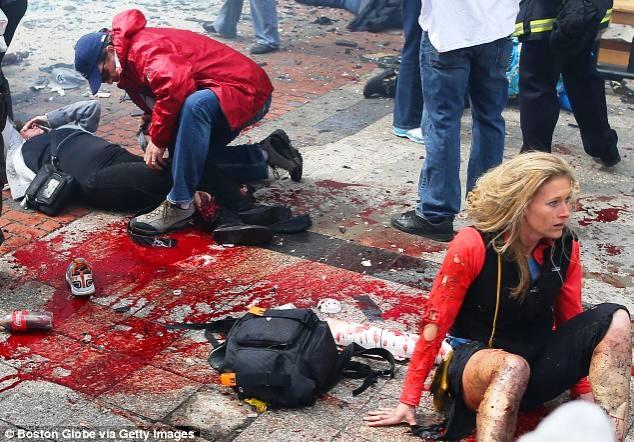 boston-marathon-terrorist-bombing-victims-photo-boston-globe-via-getty-images.jpg