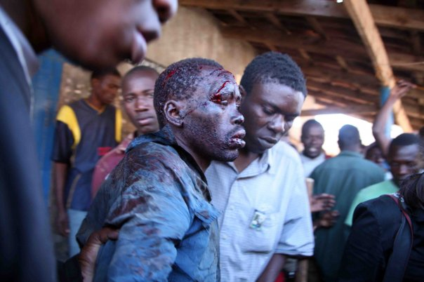 man-attacked-by-machete-post-election-violence-in-kenya-photo-by-martin-ndugu.jpg