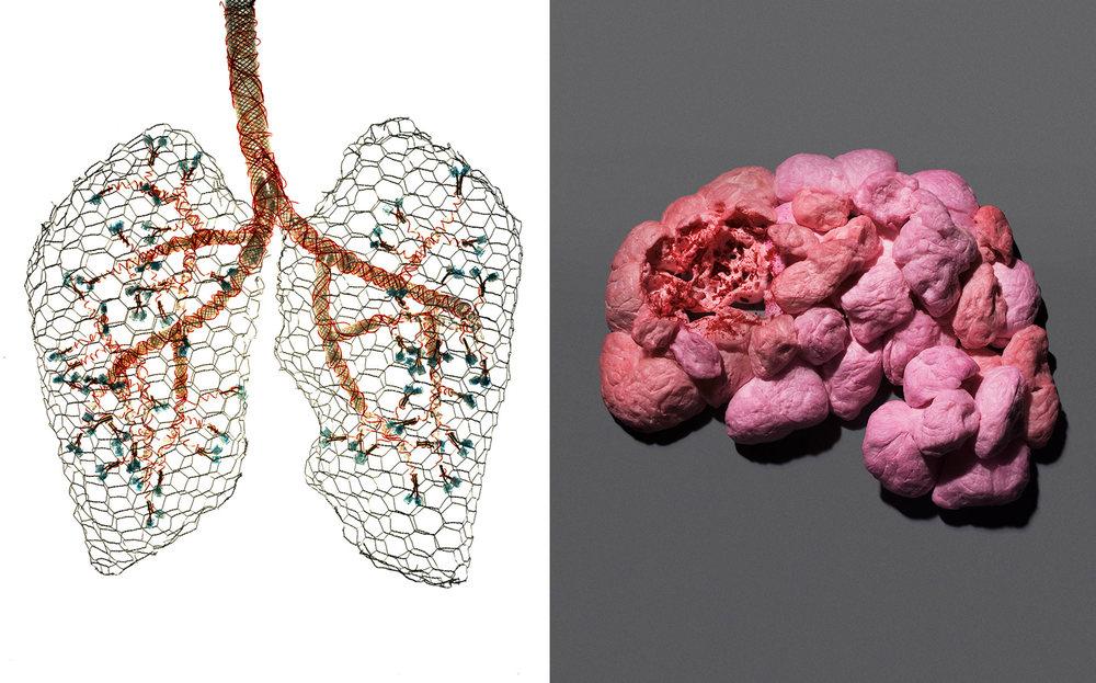 PR_lung-brain_sq.jpg