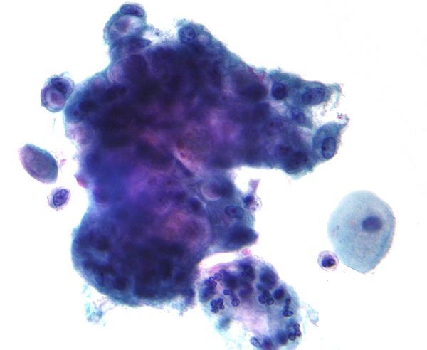 A micrograph of the type of the Adenocarcinoma cancer.