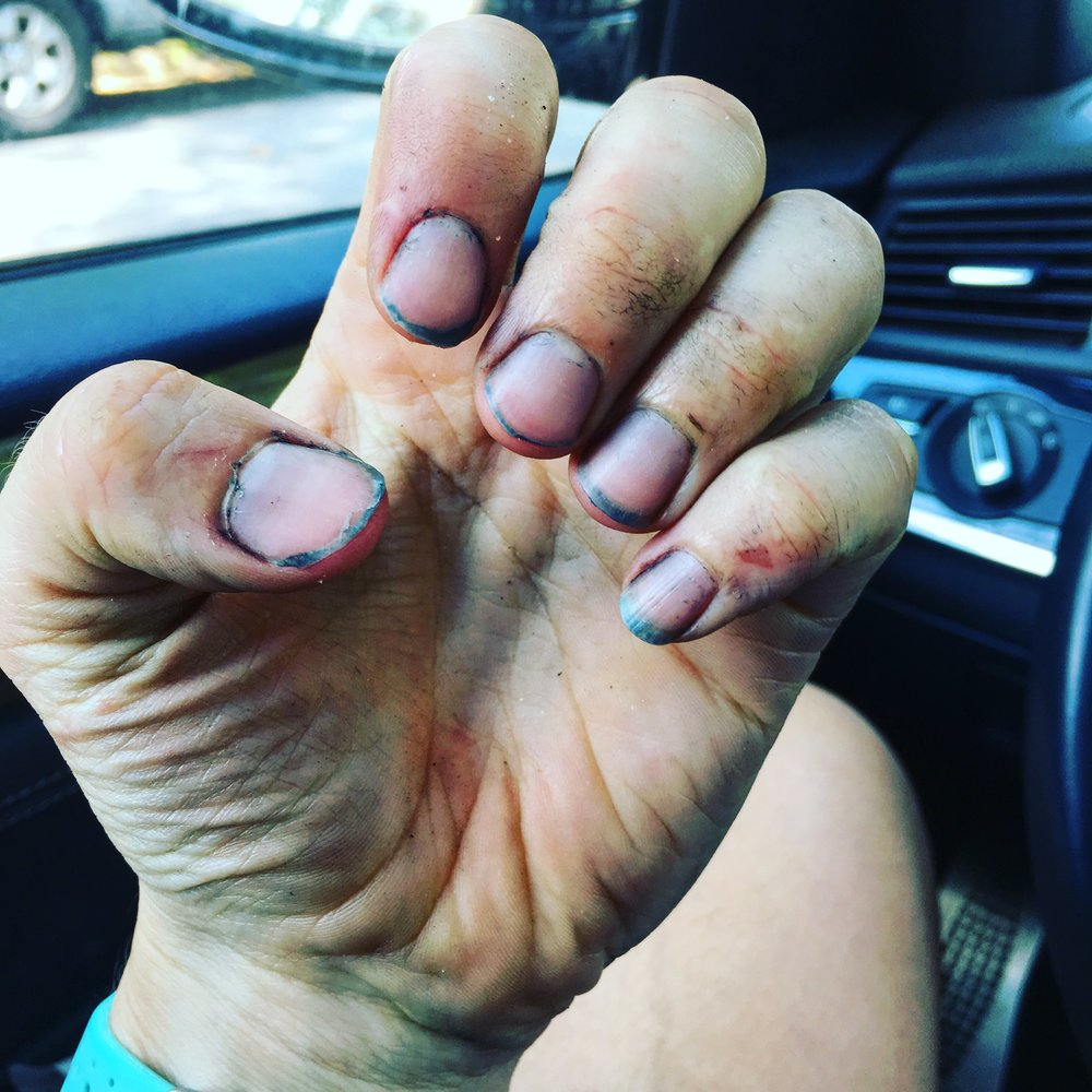 Now I really need a manicure... not what your fingers should look like post-race... bleeding and greasy