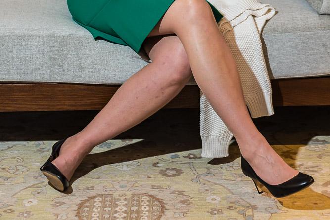 171120_WILSON_LAURA_MOM_LEGS-9433.jpg