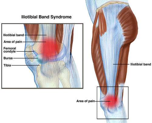 Physical Therapists Guide To Iliotibial Band Syndrome Itbs Or It