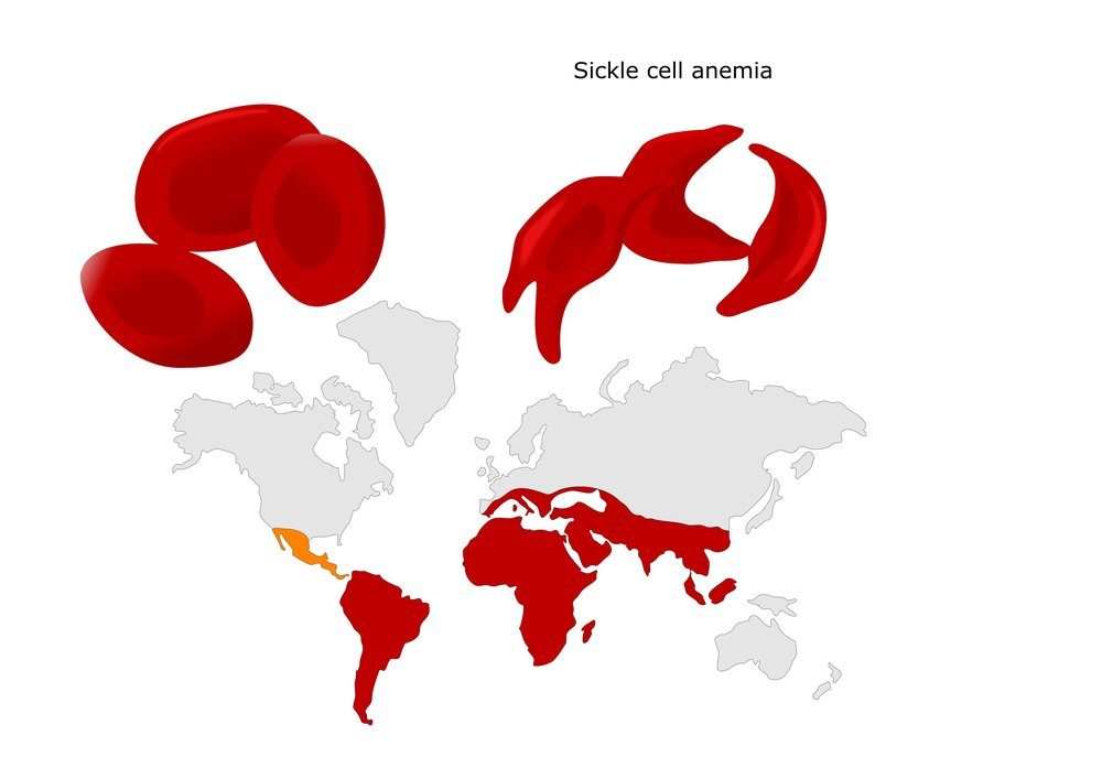 Sickle cell disease is predominant in the southern hemisphere; moving to colder climates can exacerbate its impacts. Source: ShutterStock