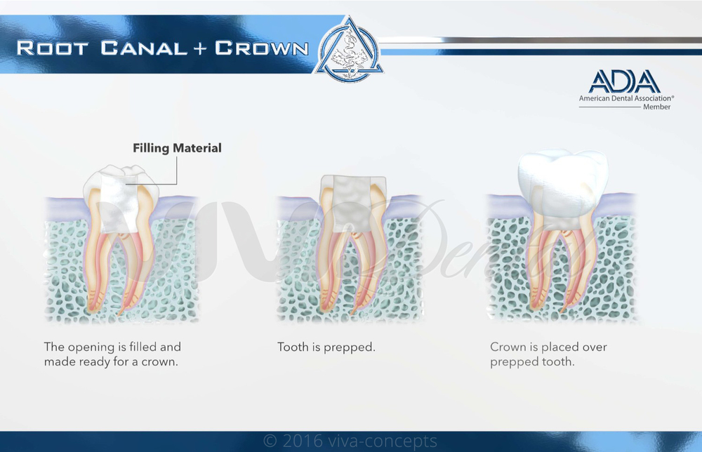ROOT CANAL & CROWN