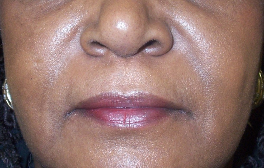Nasolabial Fillers After