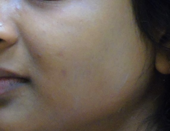 After Peel & Microdermabrasion