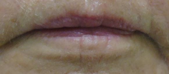 lip 6 pre .jpg