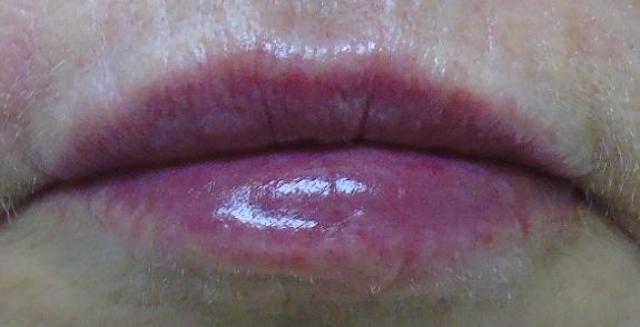 lip 6 post.jpg