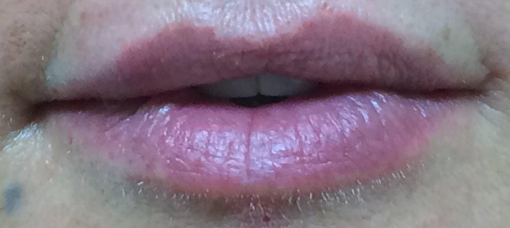 Lip 3 post.JPG