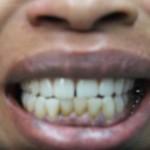 Choctaw  dental  oklahoma  hygiene  porcelain  implants  teeth  tooth  whitening  dentist  family  oral  health  braces  crowns  bridges  dentures  extraction  night  athletic  guards  orthodontic  periodontic  root canal  sedation  sleep apnea  snoring  tmp  veneers  smile  gentle  beautiful  radiant  dental plan  insurance  best  equipment