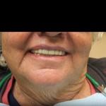 snap_on_smile3b-150x150.jpg