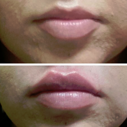 Lips-3.png