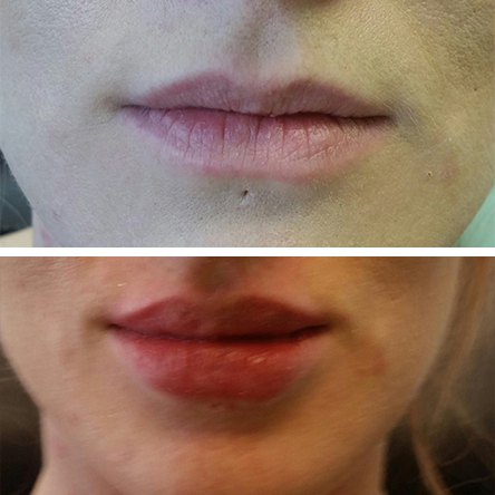 Lips-10.png