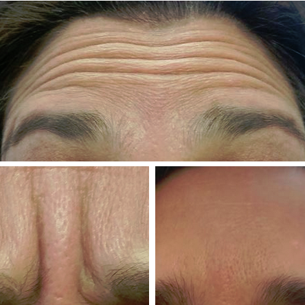 Botox-4.png
