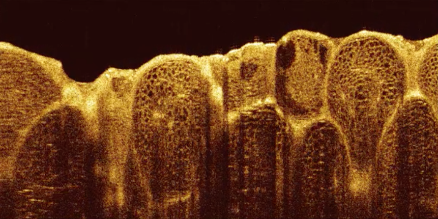 3D image stack of lemon pulp  (≈  8 x 8   x 4mm) .   Click to download video (15MB)