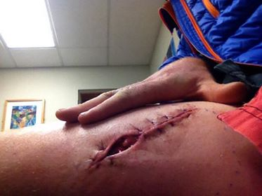 It was a number of months before getting back on the hill after this tusk injury.