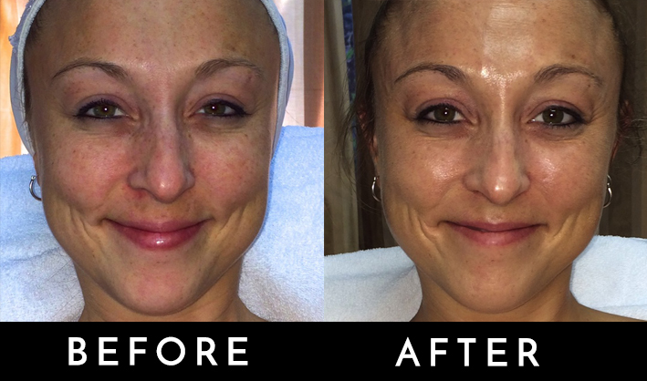 Signature Face lift before and after 2.jpg