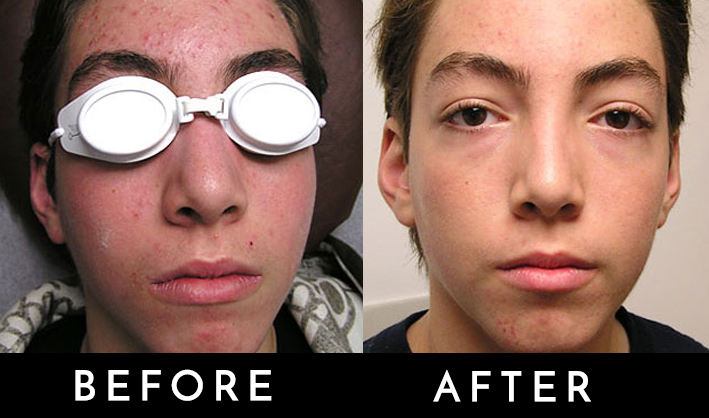 acne phototherapy 1.jpg