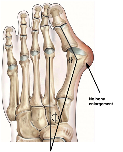 biomechanical bunion diagram.jpg