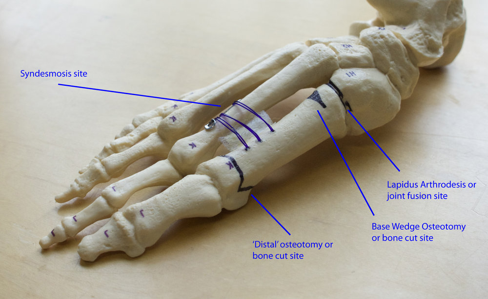 osteotomy model diagram.jpg