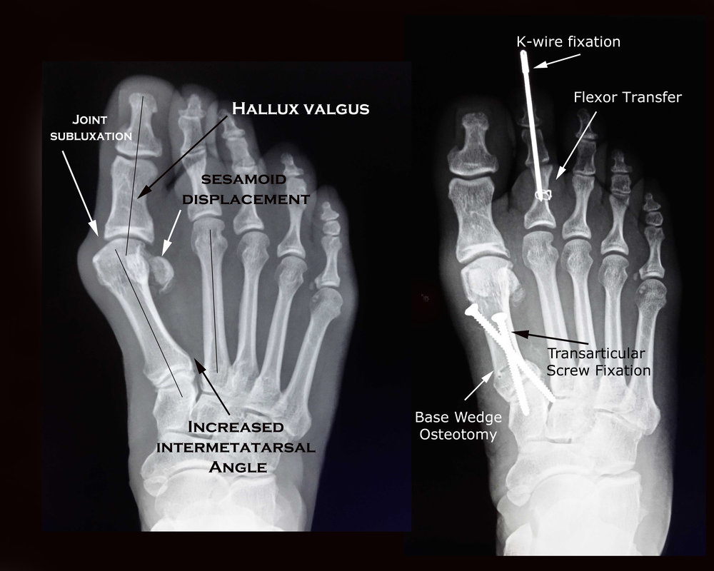 This is an example of 'traditional' bunionectomy surgery that employs the use of an 'osteotomy' or bone cut to angulate the first metatarsal and screws that maintain that position until bone healing occurs. Note that a second toe surgery was included in this procedure. Note that the 1st metatarsal is shortened by this procedure!