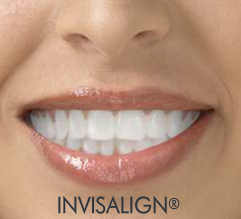 Invisalign-th.jpg