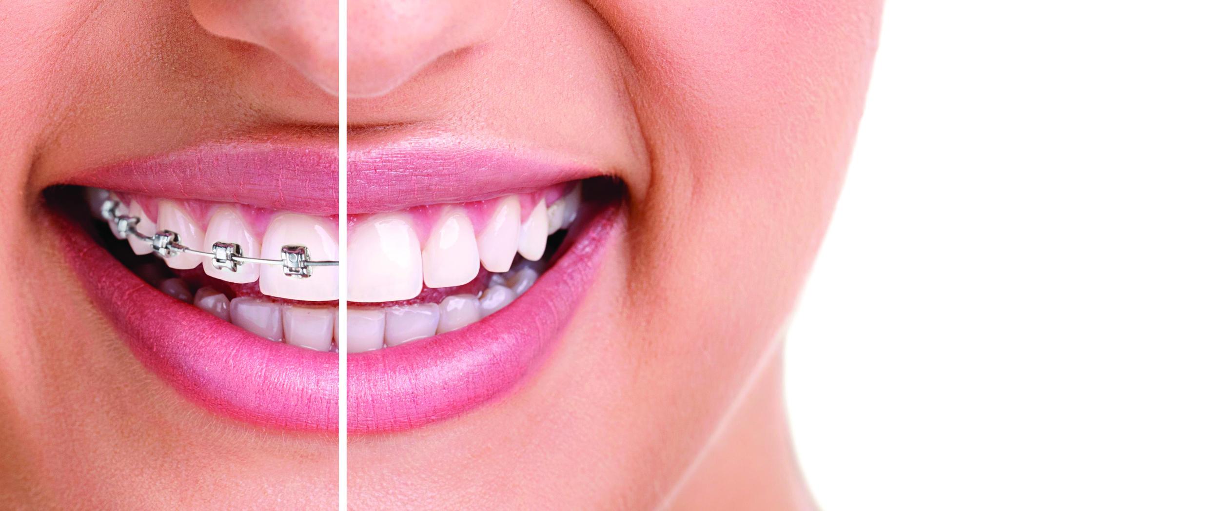 Invisalign clear braces expressions orthodontics braces or invisaligng solutioingenieria Images