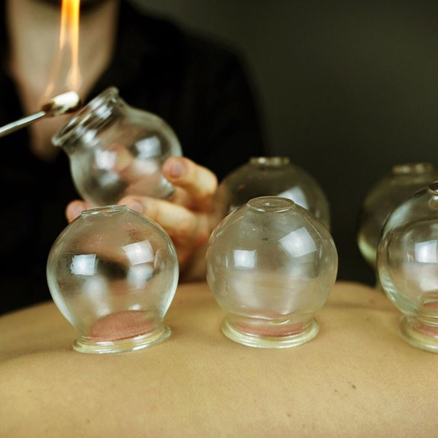 Fan of cupping? 🔥🔥🔥 _ I apply by creating a vacuum in the cup with a flame to lift the tissues. _ It's pain free and, although it may leave marks, will leave you feeling great afterwards _ DM me or leave a comment below if you have any questions or opinions! _ _ _ #health #natural #healthy #goals #cupping #acupuncture #tcm #london #wellness #naturalhealth #davidpeterslondon #betterforit #alternativehealth #clean #motivation #inspiration #live #instagood #life #acupunctureworks #acupoints #painfree #fresh #different #healthyliving #healthychoices #london #davidpeterslondon #mindbodyspirit