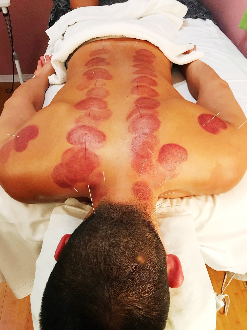 Benefits of Cupping
