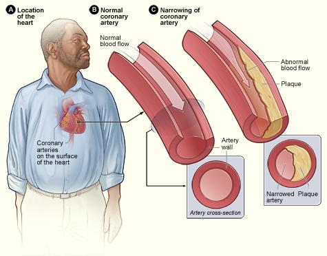 Atherosclerosis (i.e. Cardiovascular Disease)