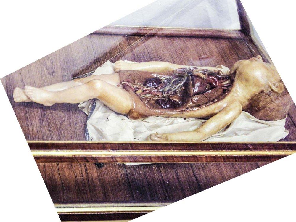Fetus-HEYDT-SkinDeep.jpg