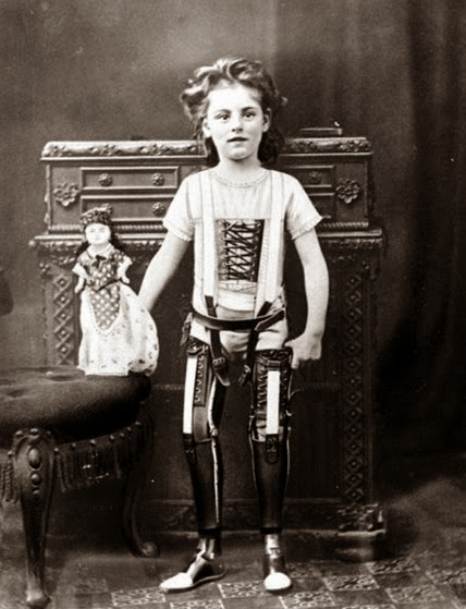 Vintage black and white photo of a girl with two prosthetic legs standing for a portrait.