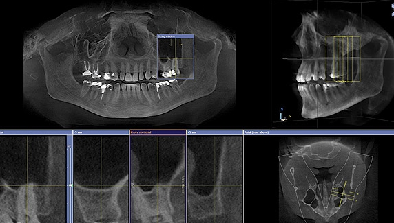 CBCT Scan Ballantyne Dentistry.jpeg
