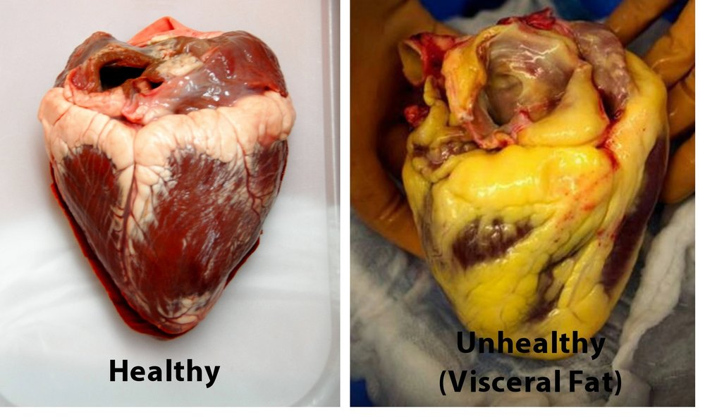 Visceral fat is the fat around internal organs. It fuels inflammation and insulin resistance