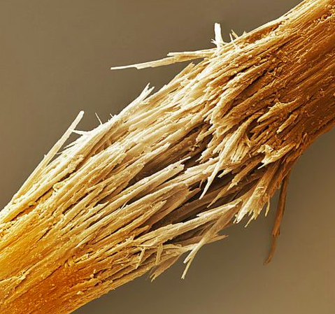 Microscopic view of broken hair strand.