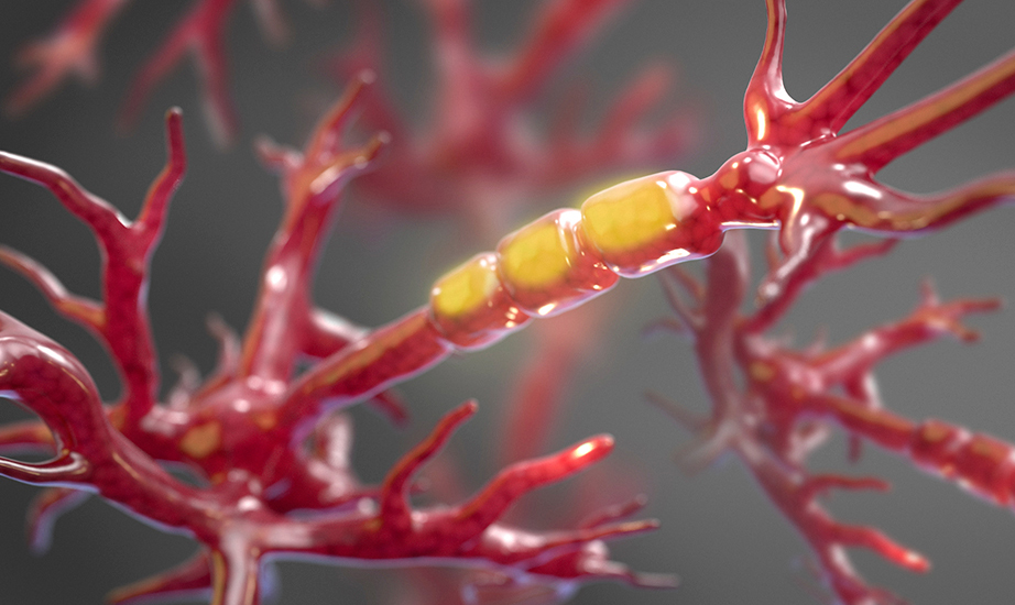 Therapies already in development aim to block the activity of a particular enzyme in order to halt the stripping of axons and prevent neuronal dysfunction in people with amyotrophic lateral sclerosis, or ALS.Credit: iStock