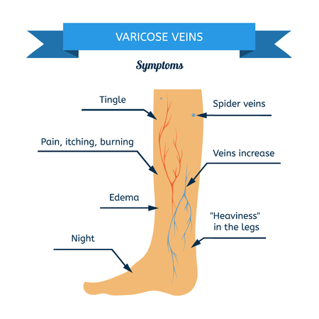 69777789_S-spider_veins_vericose_poor_circulation_clots_leg_foot.jpg