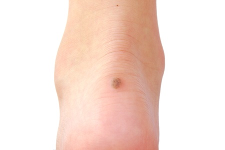 43672457_S-brown_melanoma_cancer_foot_growth_callus_blister_mole.jpg